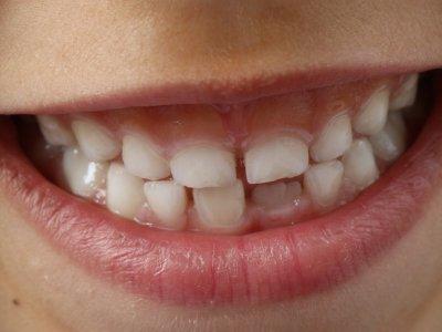 MIH: Die neue Zahnkrankheit lässt Kinderzähne bröckeln